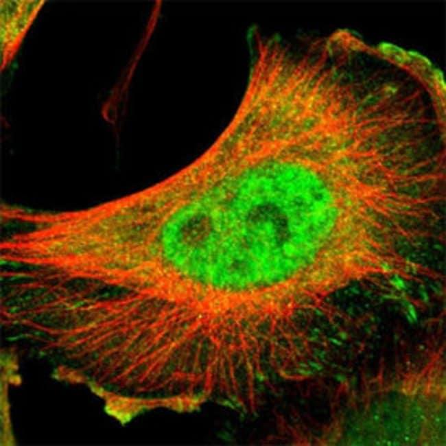 LIG4 Rabbit anti-Human, Polyclonal , Abnova 100μL; Unlabeled:Antibodies