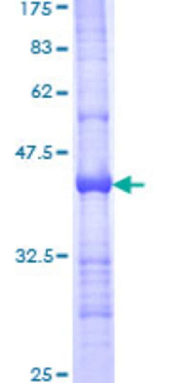 Abnova Human LDB1 Partial ORF (NP_003884, 1 a.a. - 110 a.a.) Recombinant