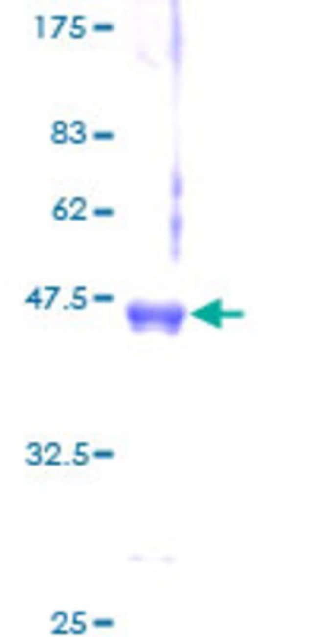 AbnovaHuman AAPLN Full-length ORF (AAH21104.1, 1 a.a.  122 a.a.) Recombinant