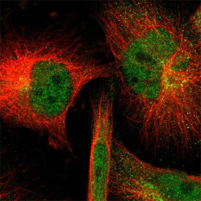 SOD1 Rabbit anti-Human, Mouse, Rat, Polyclonal , Abnova 100μL; Unlabeled:Antibodies