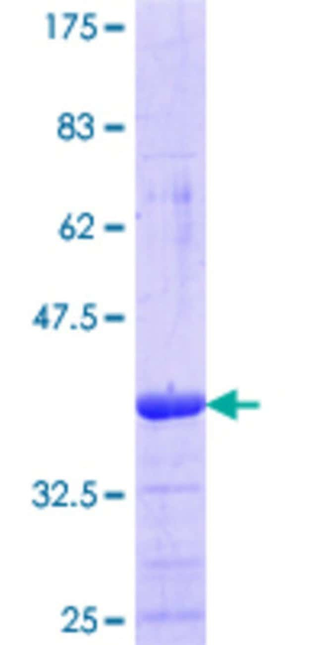 Abnova™Human PER3 Partial ORF (NP_058515.1, 1105 a.a. - 1201 a.a.) Recombinant Protein with GST-tag at N-terminal 25μg Abnova™Human PER3 Partial ORF (NP_058515.1, 1105 a.a. - 1201 a.a.) Recombinant Protein with GST-tag at N-terminal