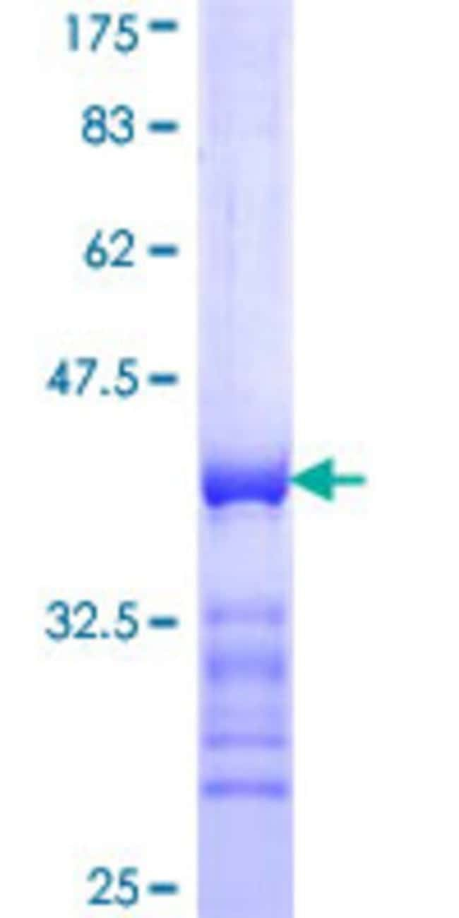Abnova™Human SYNJ1 Partial ORF (NP_003886, 1474 a.a. - 1573 a.a.) Recombinant Protein with GST-tag at N-terminal 25μg Abnova™Human SYNJ1 Partial ORF (NP_003886, 1474 a.a. - 1573 a.a.) Recombinant Protein with GST-tag at N-terminal