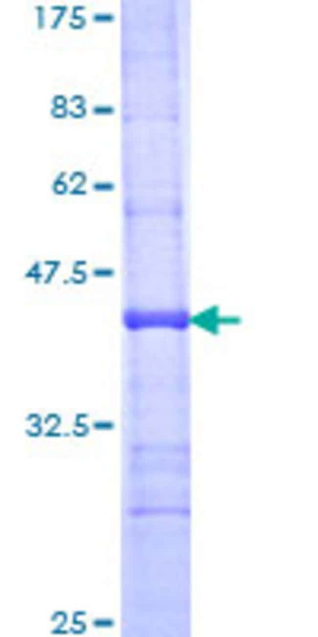 Abnova™Human SGPL1 Partial ORF (NP_003892, 459 a.a. - 568 a.a.) Recombinant Protein with GST-tag at N-terminal 25μg Abnova™Human SGPL1 Partial ORF (NP_003892, 459 a.a. - 568 a.a.) Recombinant Protein with GST-tag at N-terminal