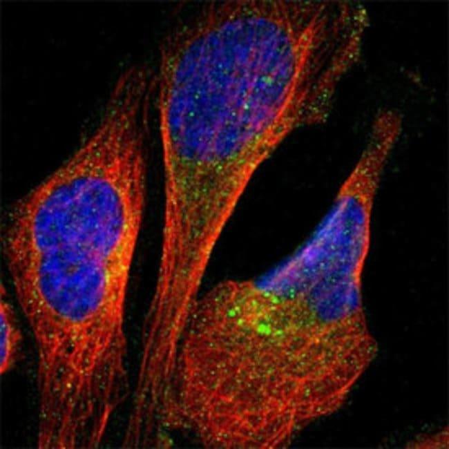 APP Rabbit anti-Human, Polyclonal , Abnova 100μL; Unlabeled:Antibodies