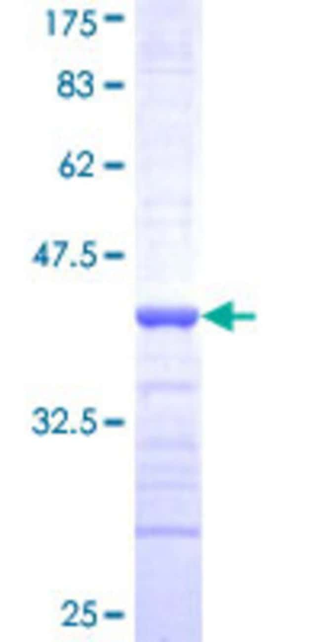 Abnova™Human FUBP1 Partial ORF (NP_003893, 27 a.a. - 136 a.a.) Recombinant Protein with GST-tag at N-terminal 25μg Abnova™Human FUBP1 Partial ORF (NP_003893, 27 a.a. - 136 a.a.) Recombinant Protein with GST-tag at N-terminal