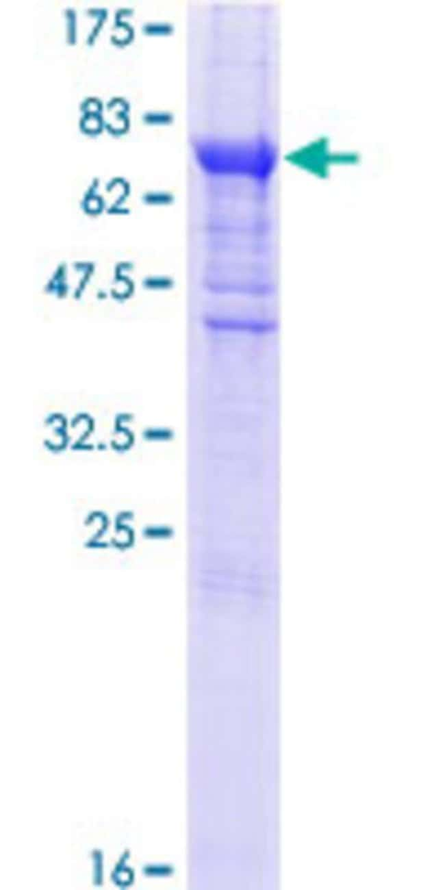 Abnova™Human EIF2B3 Full-length ORF (NP_065098.1, 1 a.a. - 452 a.a.) Recombinant Protein with GST-tag at N-terminal 25μg Abnova™Human EIF2B3 Full-length ORF (NP_065098.1, 1 a.a. - 452 a.a.) Recombinant Protein with GST-tag at N-terminal