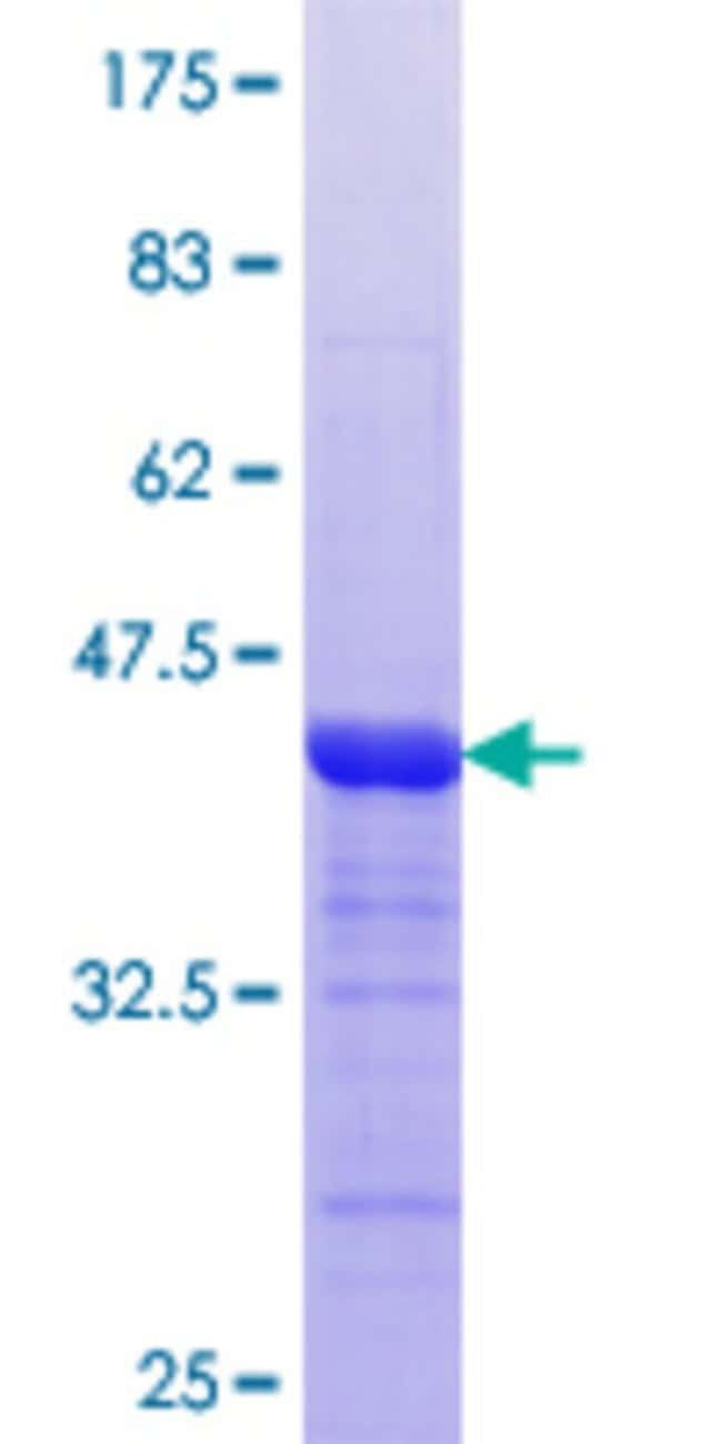 Abnova™ Human MTMR3 Partial ORF (NP_066576.1, 579 a.a. - 674 a.a.) Recombinant Protein with GST-tag at N-terminal 10μg Abnova™ Human MTMR3 Partial ORF (NP_066576.1, 579 a.a. - 674 a.a.) Recombinant Protein with GST-tag at N-terminal