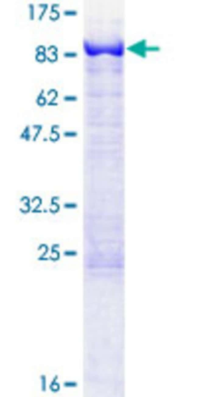 Abnova™Human MTMR2 Full-length ORF (NP_958435.1, 1 a.a. - 571 a.a.) Recombinant Protein with GST-tag at N-terminal 10μg Abnova™Human MTMR2 Full-length ORF (NP_958435.1, 1 a.a. - 571 a.a.) Recombinant Protein with GST-tag at N-terminal