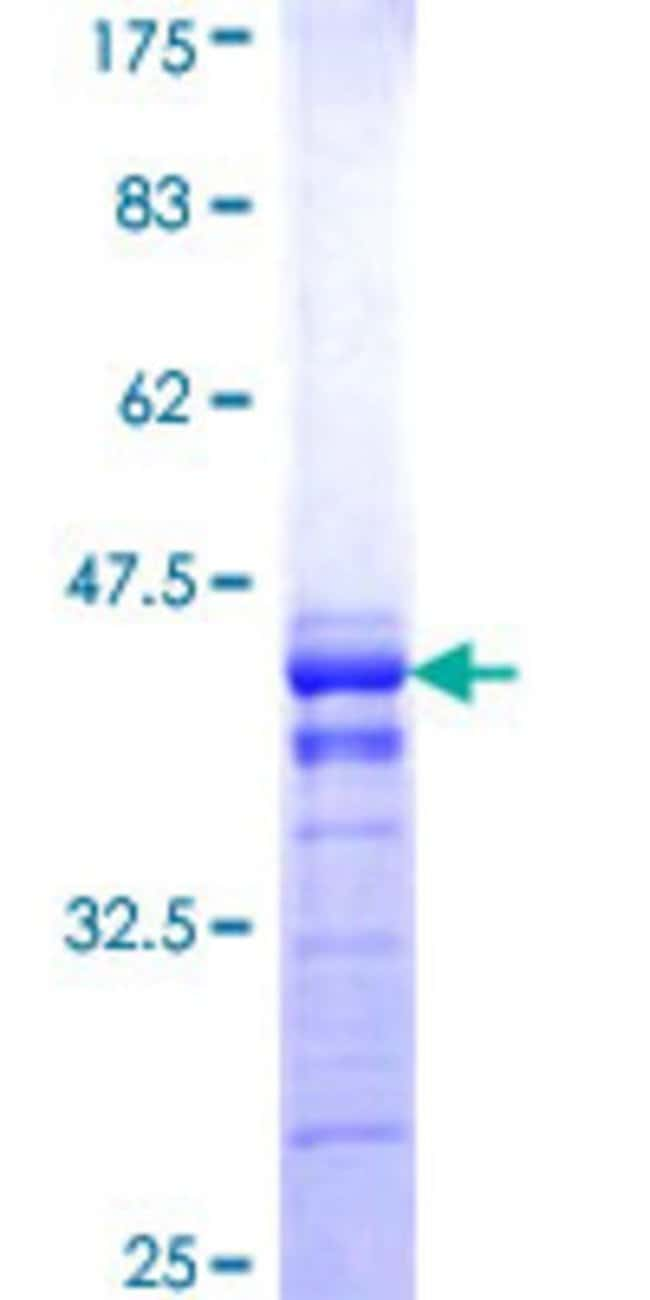 Abnova™Human MTMR2 Partial ORF (NP_057240, 5 a.a. - 100 a.a.) Recombinant Protein with GST-tag at N-terminal 10μg Abnova™Human MTMR2 Partial ORF (NP_057240, 5 a.a. - 100 a.a.) Recombinant Protein with GST-tag at N-terminal