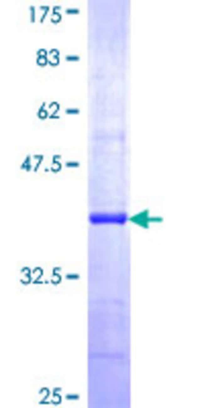 AbnovaHuman AP1G2 Partial ORF (NP_003908, 686 a.a. - 785 a.a.) Recombinant