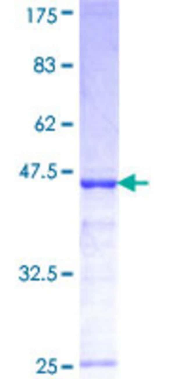 Abnova Human GYG2 Partial ORF (NP_003909, 392 a.a. - 501 a.a.) Recombinant