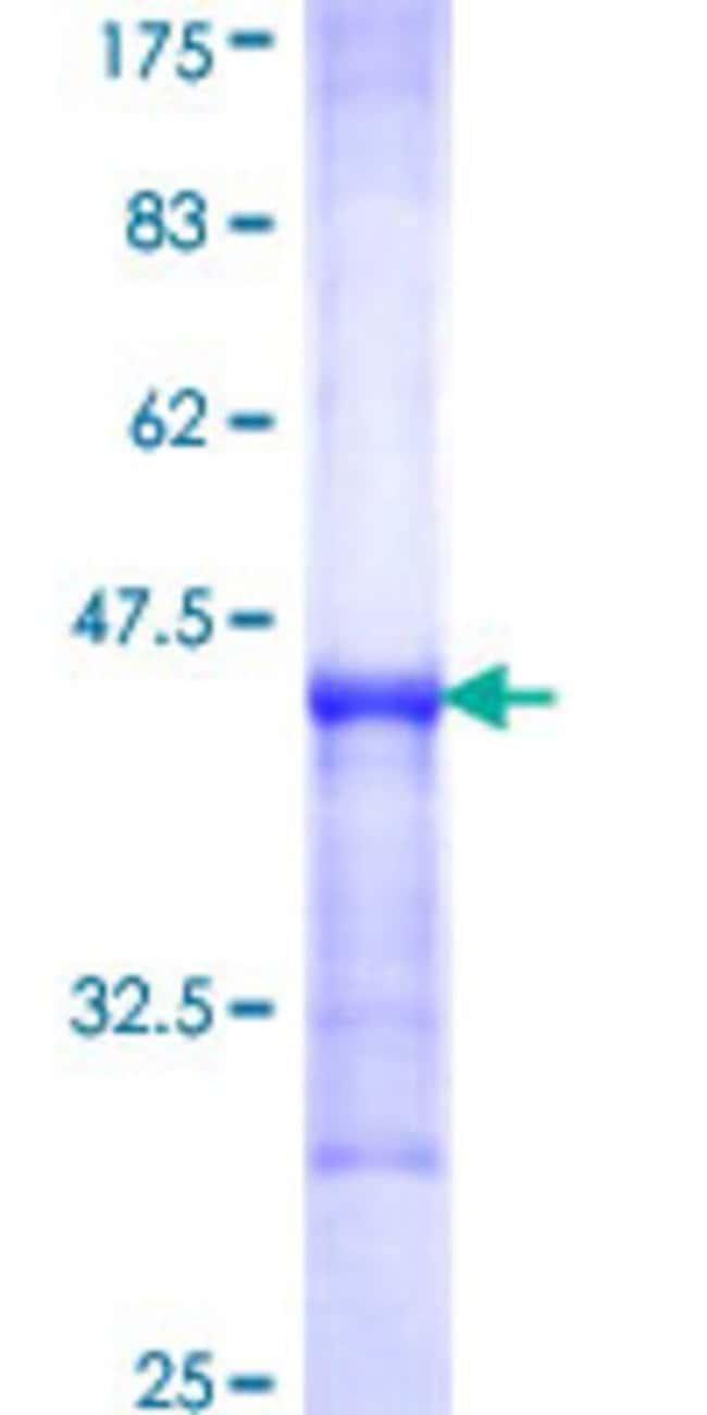 Abnova Human KYNU Partial ORF (NP_003928, 2 a.a. - 108 a.a.) Recombinant