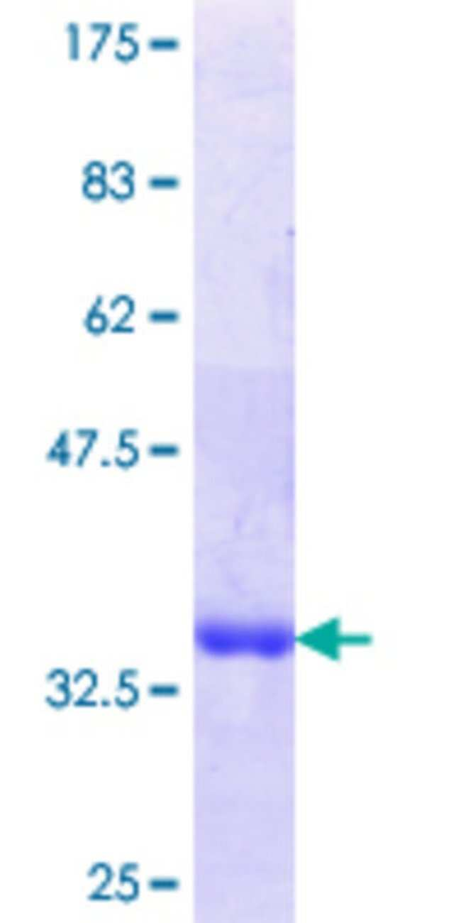 Abnova Human LIMD1 Partial ORF (NP_055055.1, 577 a.a. - 674 a.a.) Recombinant