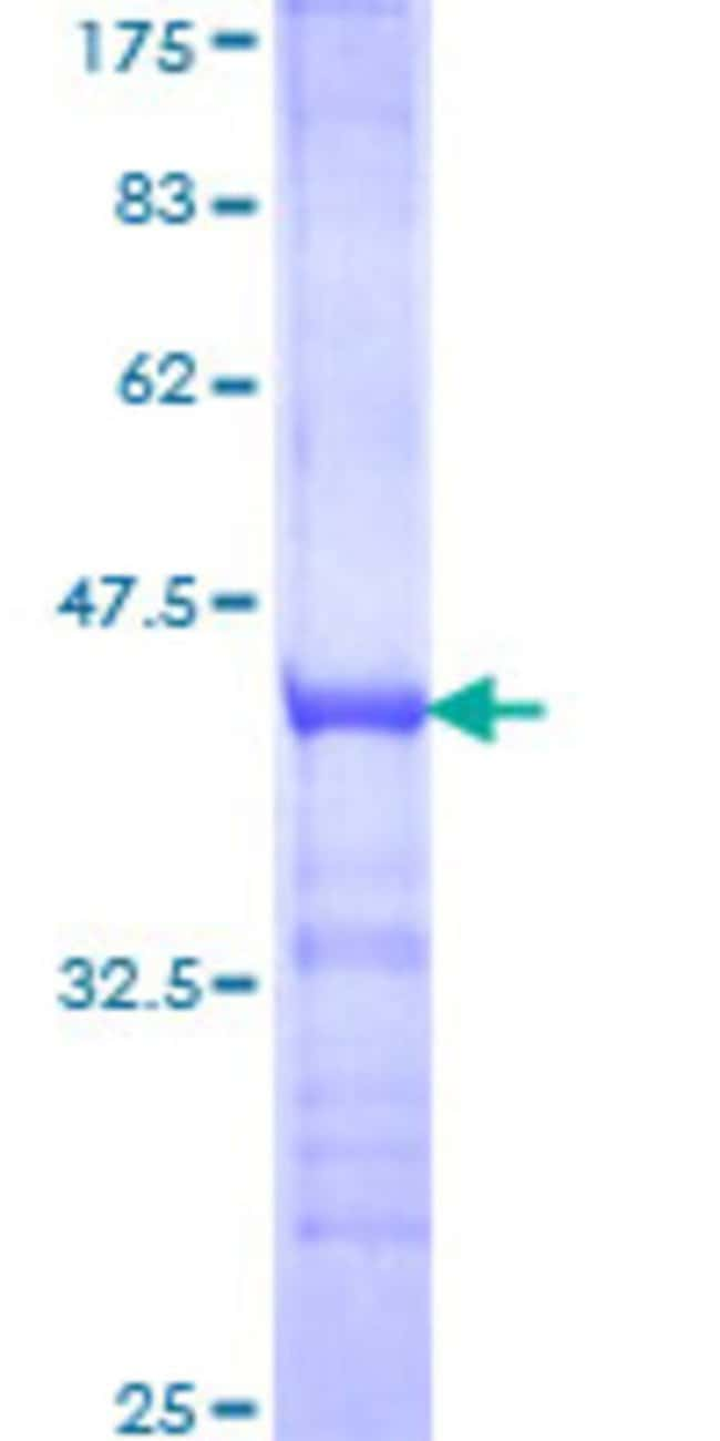 Abnova™Human TAF1A Partial ORF (NP_005672, 1 a.a. - 100 a.a.) Recombinant Protein with GST-tag at N-terminal 25μg Abnova™Human TAF1A Partial ORF (NP_005672, 1 a.a. - 100 a.a.) Recombinant Protein with GST-tag at N-terminal