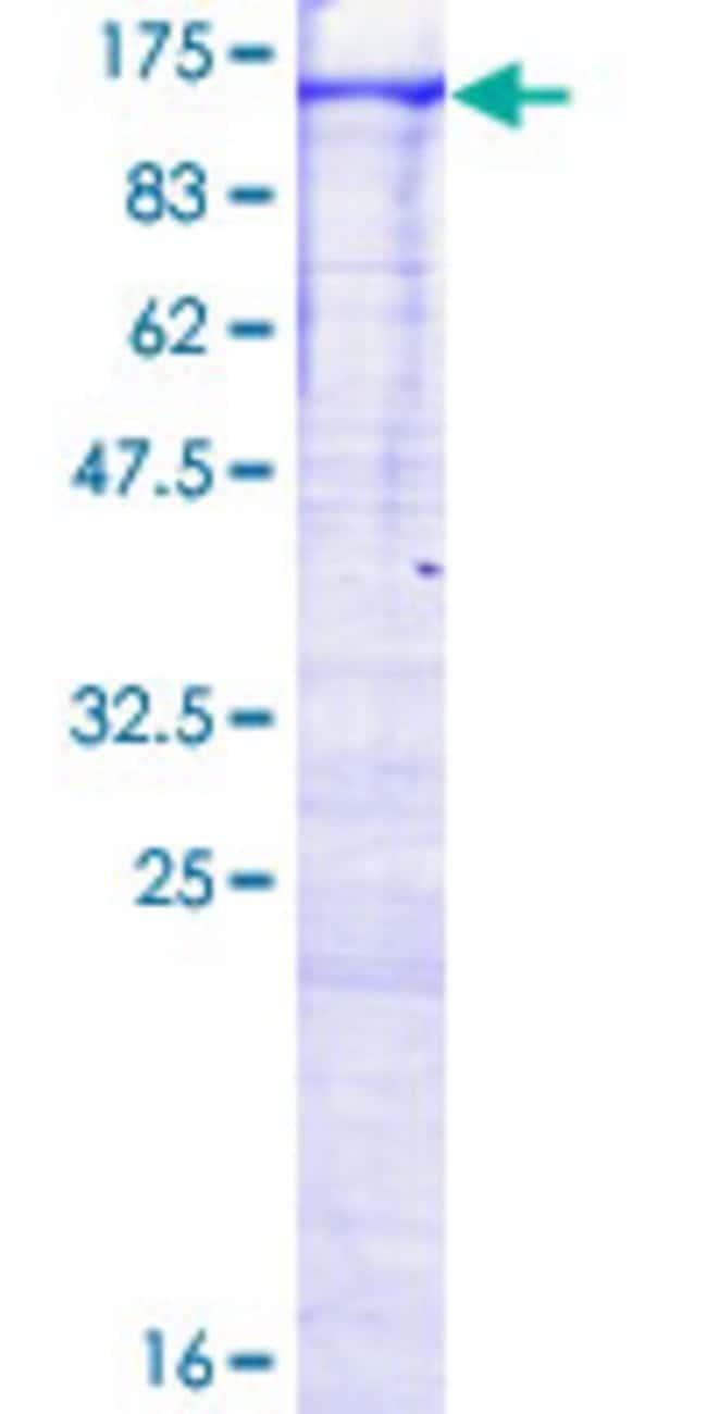 Abnova Human MAP3K14 Full-length ORF (NP_003945.2, 1 a.a. - 947 a.a.) Recombinant
