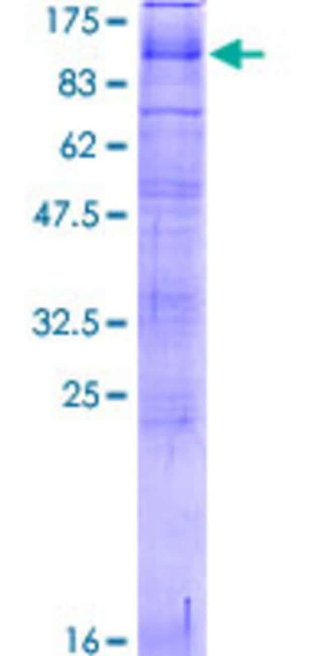 Abnova Human PKD2L1 Full-length ORF (NP_057196.2, 1 a.a. - 805 a.a.) Recombinant