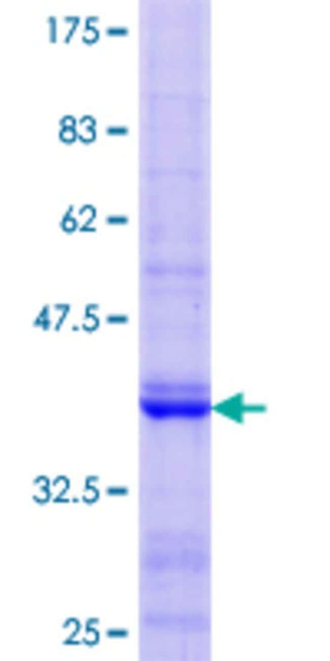 Abnova Human PKD2L1 Partial ORF (NP_057196.2, 173 a.a. - 272 a.a.) Recombinant