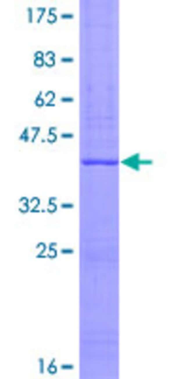 Abnova™Human SEMA5A Partial ORF (NP_003957, 393 a.a. - 499 a.a.) Recombinant Protein with GST-tag at N-terminal 10μg Abnova™Human SEMA5A Partial ORF (NP_003957, 393 a.a. - 499 a.a.) Recombinant Protein with GST-tag at N-terminal