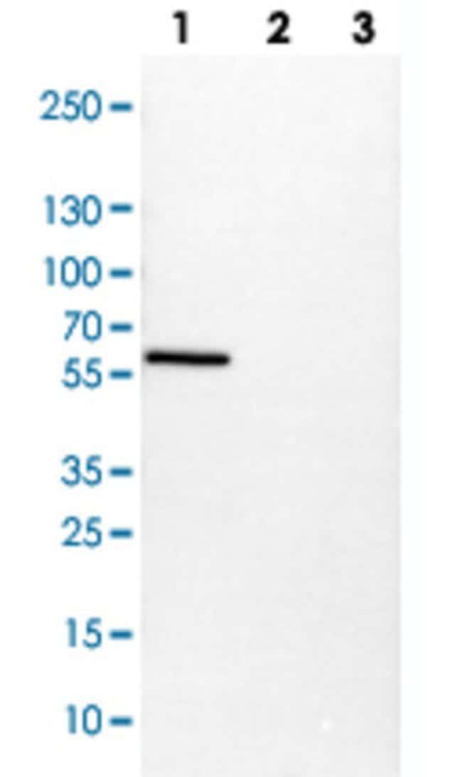 VIM Rabbit anti-Human, Mouse, Polyclonal , Abnova 100μL; Unlabeled:Antibodies
