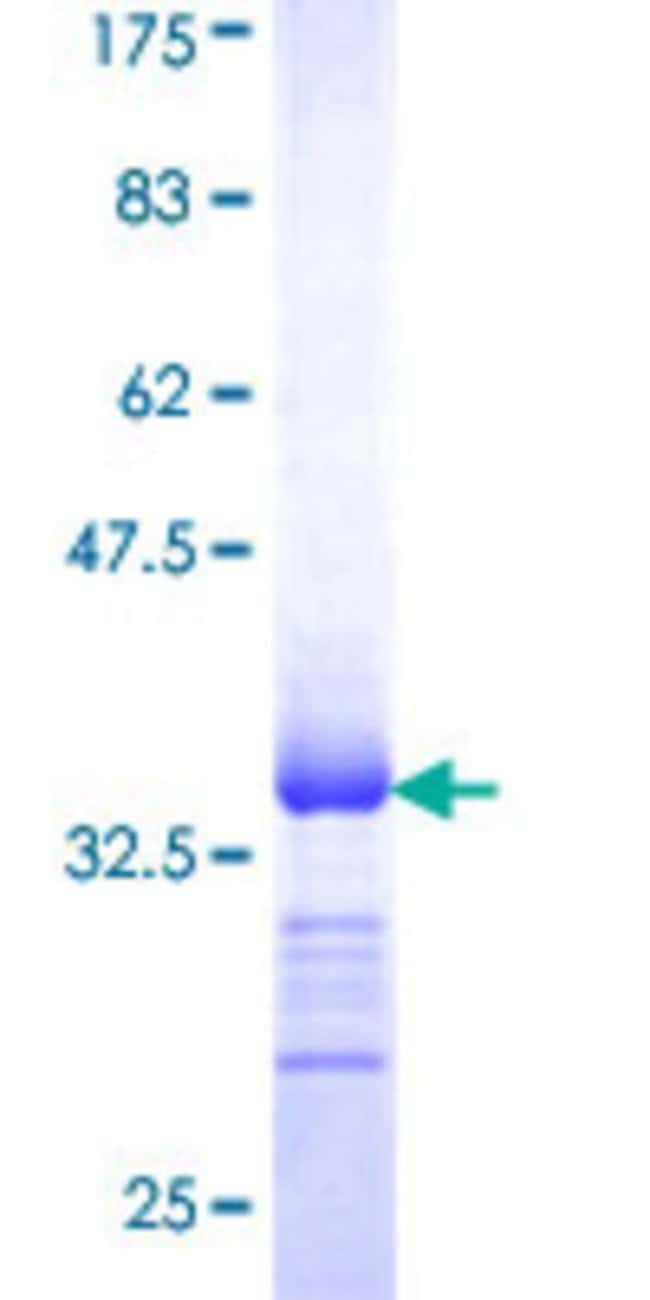 Abnova™ Human SLC13A2 Partial ORF (NP_003975, 146 a.a. - 220 a.a.) Recombinant Protein with GST-tag at N-terminal 25μg Abnova™ Human SLC13A2 Partial ORF (NP_003975, 146 a.a. - 220 a.a.) Recombinant Protein with GST-tag at N-terminal