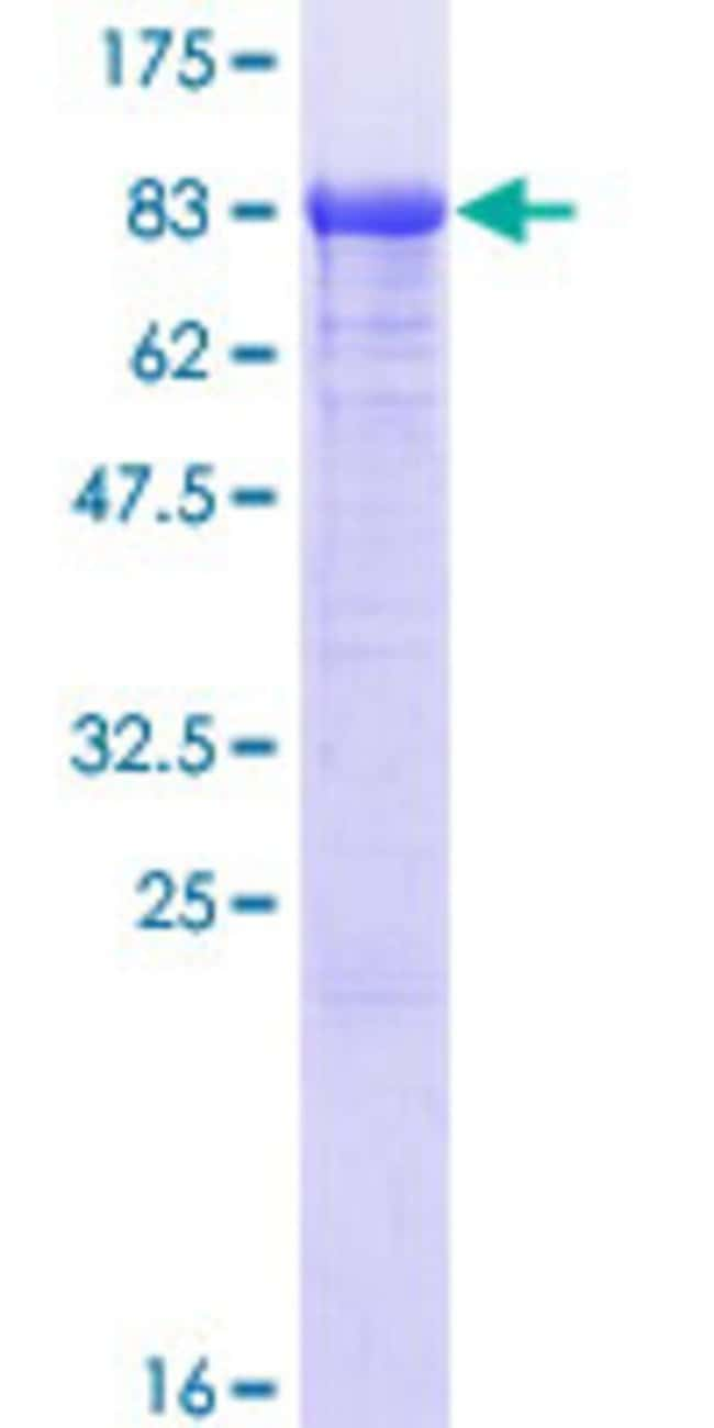 Abnova Human PAPSS1 Full-length ORF (AAH11392.1, 1 a.a. - 603 a.a.) Recombinant