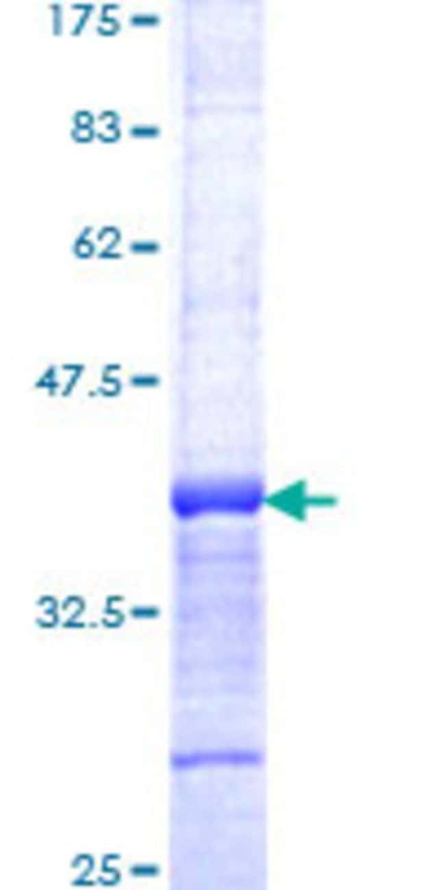 Abnova™Human PIAS2 Partial ORF (NP_004662, 385 a.a. - 473 a.a.) Recombinant Protein with GST-tag at N-terminal 25μg Abnova™Human PIAS2 Partial ORF (NP_004662, 385 a.a. - 473 a.a.) Recombinant Protein with GST-tag at N-terminal