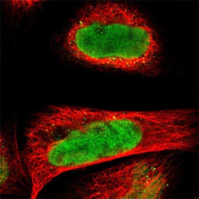 CDKL5 Rabbit anti-Human, Polyclonal , Abnova 100μL; Unlabeled:Antibodies
