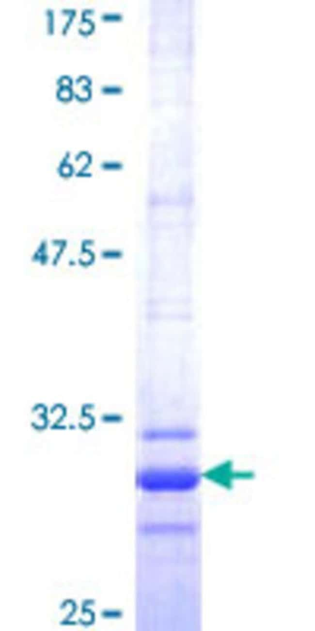 Abnova™Human CLDN2 Partial ORF (NP_065117, 29 a.a. - 80 a.a.) Recombinant Protein with GST-tag at N-terminal 25μg Abnova™Human CLDN2 Partial ORF (NP_065117, 29 a.a. - 80 a.a.) Recombinant Protein with GST-tag at N-terminal