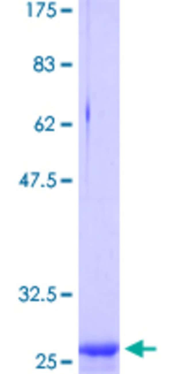 Abnova™Human CLDN2 Partial ORF (NP_065117.1, 138 a.a. - 163 a.a.) Recombinant Protein with GST-tag at N-terminal 25μg Abnova™Human CLDN2 Partial ORF (NP_065117.1, 138 a.a. - 163 a.a.) Recombinant Protein with GST-tag at N-terminal