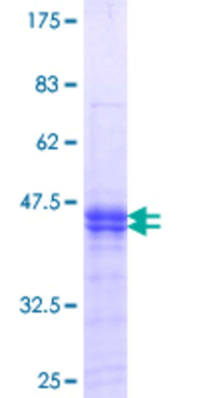 Abnova™Human PKMYT1 Partial ORF (NP_004194.3, 400 a.a. - 499 a.a.) Recombinant Protein with GST-tag at N-terminal 10μg Abnova™Human PKMYT1 Partial ORF (NP_004194.3, 400 a.a. - 499 a.a.) Recombinant Protein with GST-tag at N-terminal