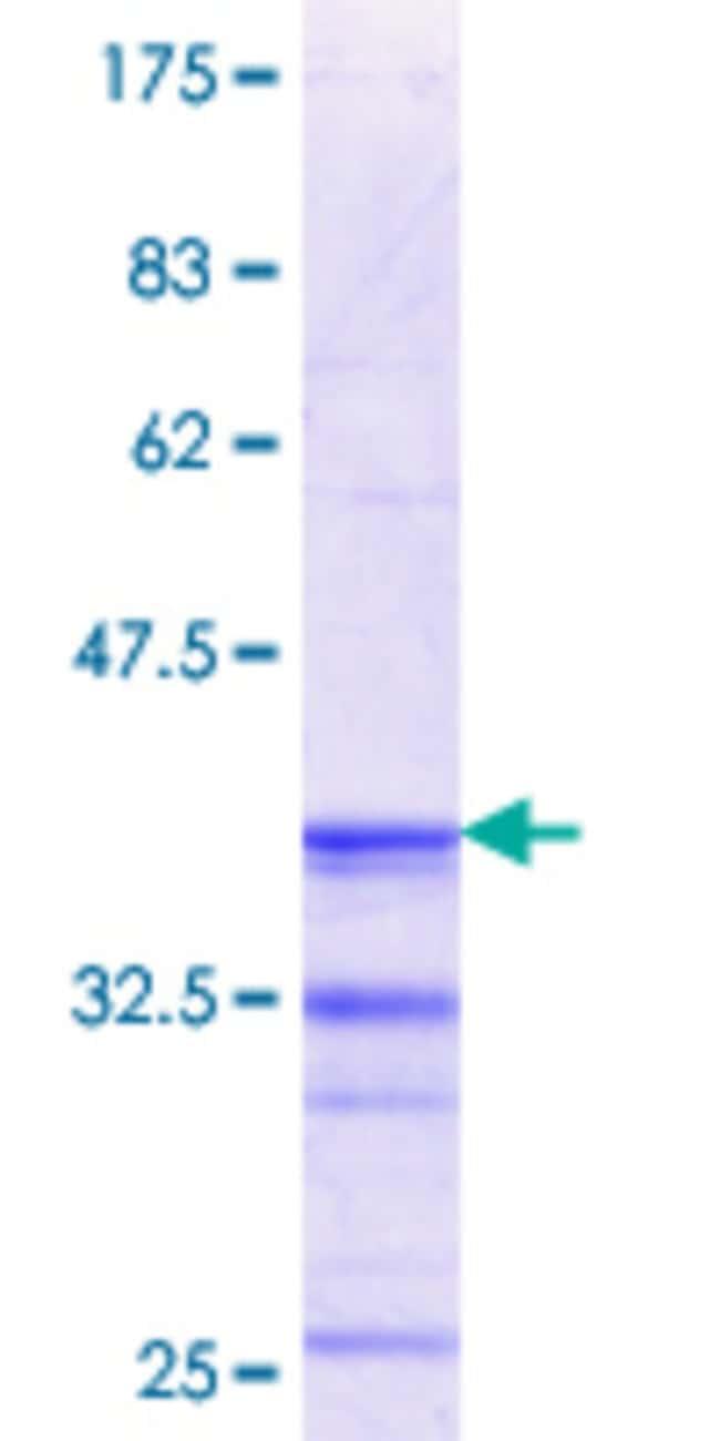 Abnova Human RGN Partial ORF (NP_004674.1, 200 a.a. - 299 a.a.) Recombinant