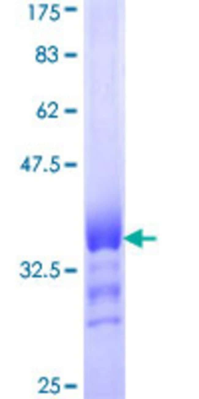 AbnovaHuman ATP6V0D1 Partial ORF (NP_004682, 238 a.a. - 308 a.a.) Recombinant