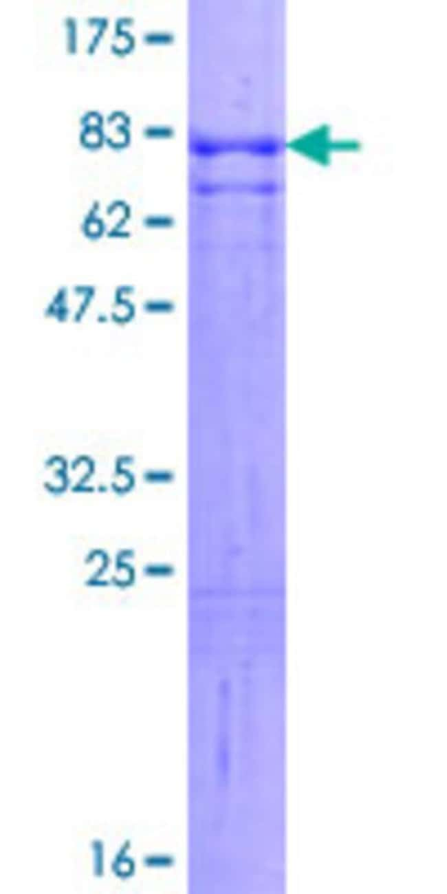 Abnova™Human INA Full-length ORF (NP_116116.1, 1 a.a. - 499 a.a.) Recombinant Protein with GST-tag at N-terminal 25μg Abnova™Human INA Full-length ORF (NP_116116.1, 1 a.a. - 499 a.a.) Recombinant Protein with GST-tag at N-terminal