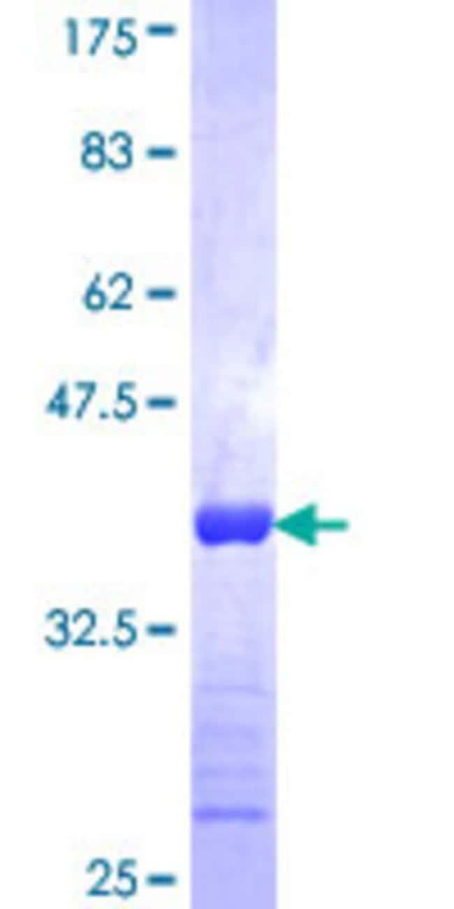 Abnova Human K6HF Partial ORF (NP_004684, 141 a.a. - 240 a.a.) Recombinant