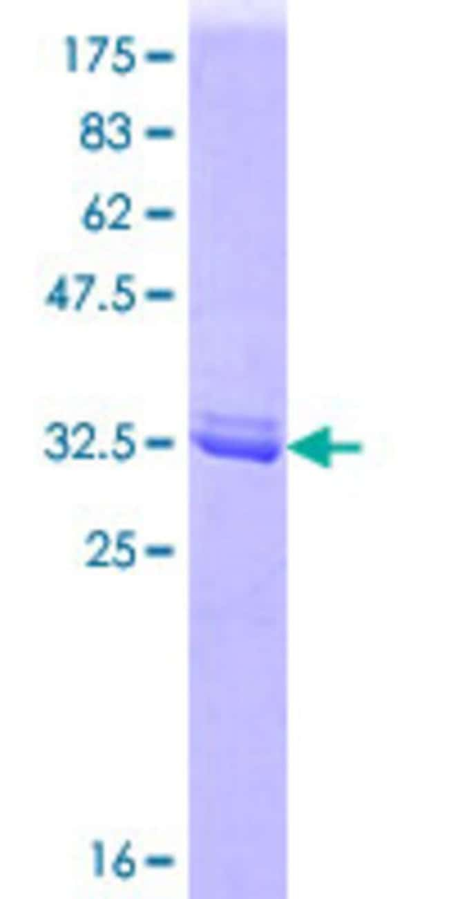 Abnova™Human ARHGEF1 Partial ORF (AAH34013.2, 830 a.a. - 927 a.a.) Recombinant Protein with GST-tag at N-terminal 25μg Abnova™Human ARHGEF1 Partial ORF (AAH34013.2, 830 a.a. - 927 a.a.) Recombinant Protein with GST-tag at N-terminal