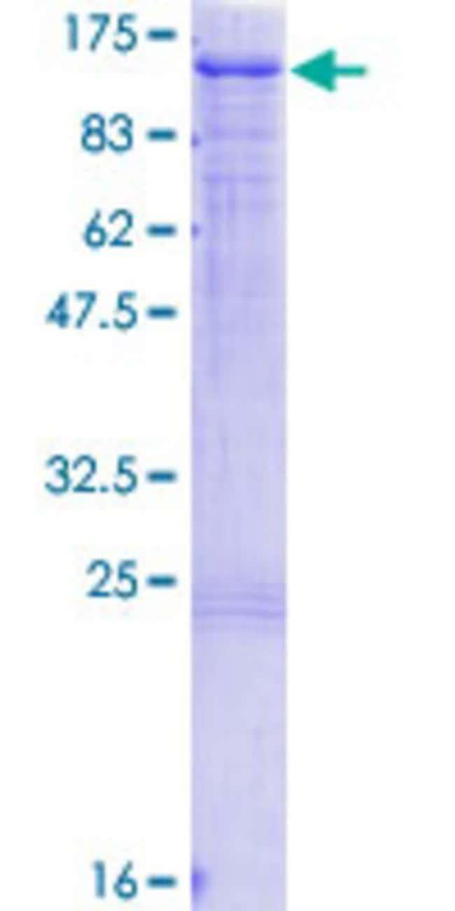 Abnova Human HGS Full-length ORF (NP_004703.1, 1 a.a. - 777 a.a.) Recombinant
