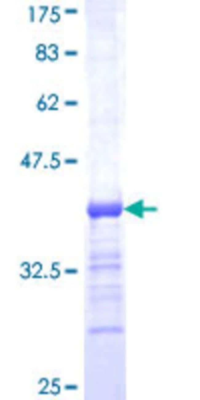 Abnova Human HGS Partial ORF (AAH03565, 513 a.a. - 612 a.a.) Recombinant