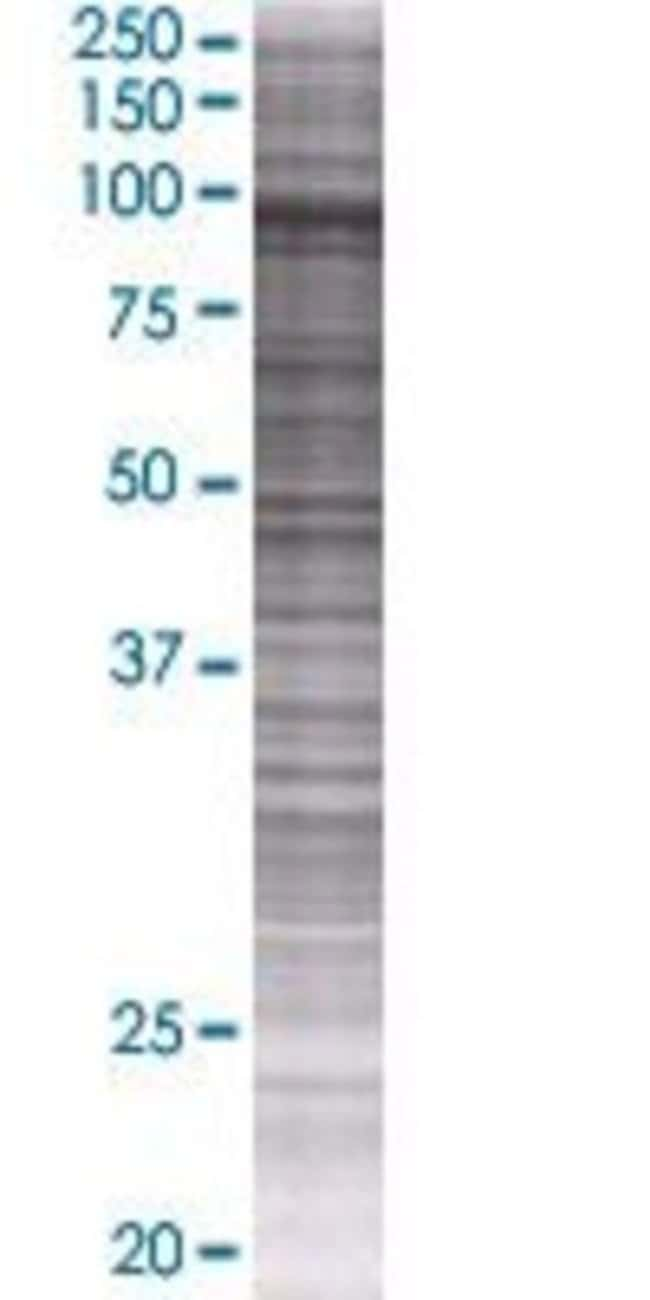 Abnova HGS 293T Cell Transient Overexpression Lysate (Denatured) 100µL:Life
