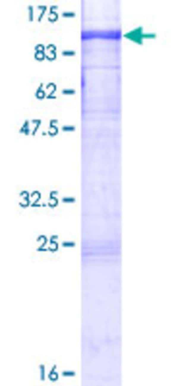 Abnova™Human DYRK1B Full-length ORF (NP_004705.1, 1 a.a. - 629 a.a.) Recombinant Protein with GST-tag at N-terminal 10μg Abnova™Human DYRK1B Full-length ORF (NP_004705.1, 1 a.a. - 629 a.a.) Recombinant Protein with GST-tag at N-terminal