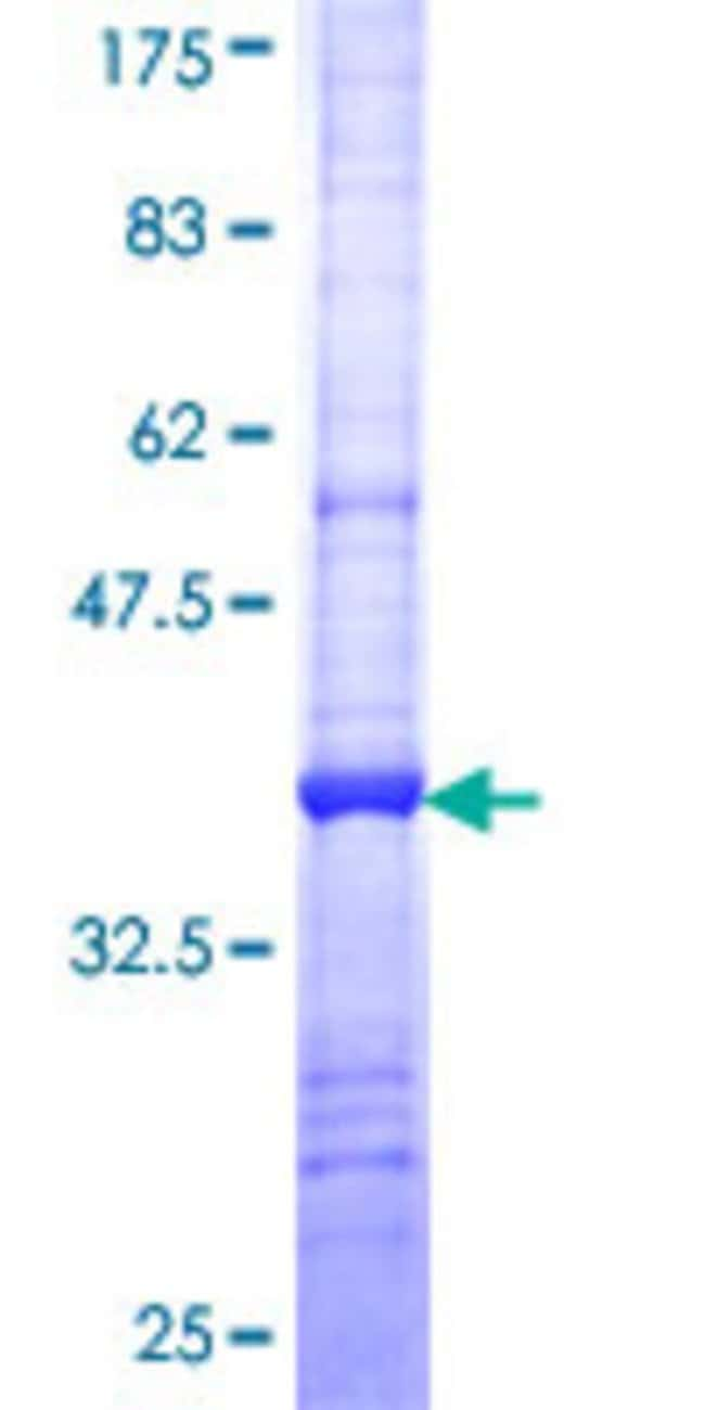 Abnova™Human SLC6A5 Partial ORF (NP_004202, 294 a.a. - 393 a.a.) Recombinant Protein with GST-tag at N-terminal 25μg Abnova™Human SLC6A5 Partial ORF (NP_004202, 294 a.a. - 393 a.a.) Recombinant Protein with GST-tag at N-terminal