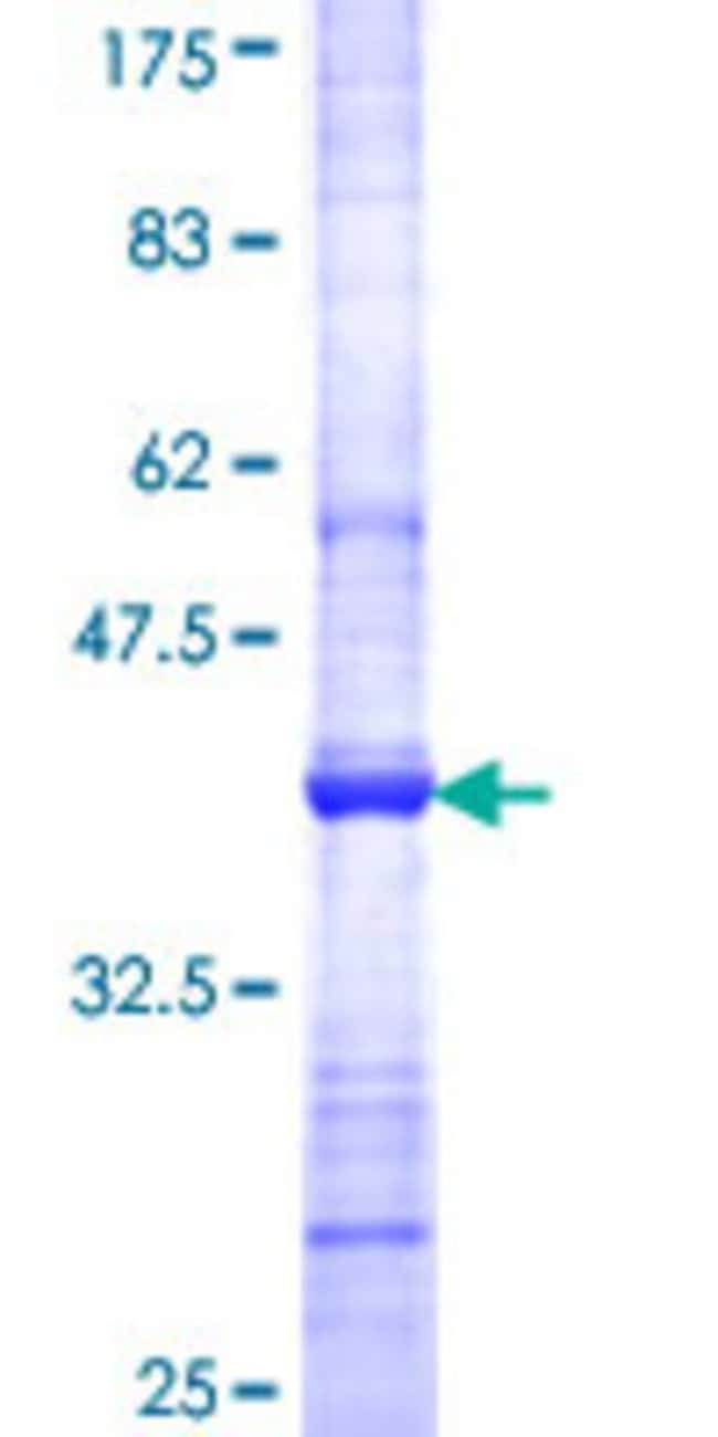 Abnova™Human PCSK7 Partial ORF (NP_004707, 434 a.a. - 543 a.a.) Recombinant Protein with GST-tag at N-terminal 25μg Abnova™Human PCSK7 Partial ORF (NP_004707, 434 a.a. - 543 a.a.) Recombinant Protein with GST-tag at N-terminal
