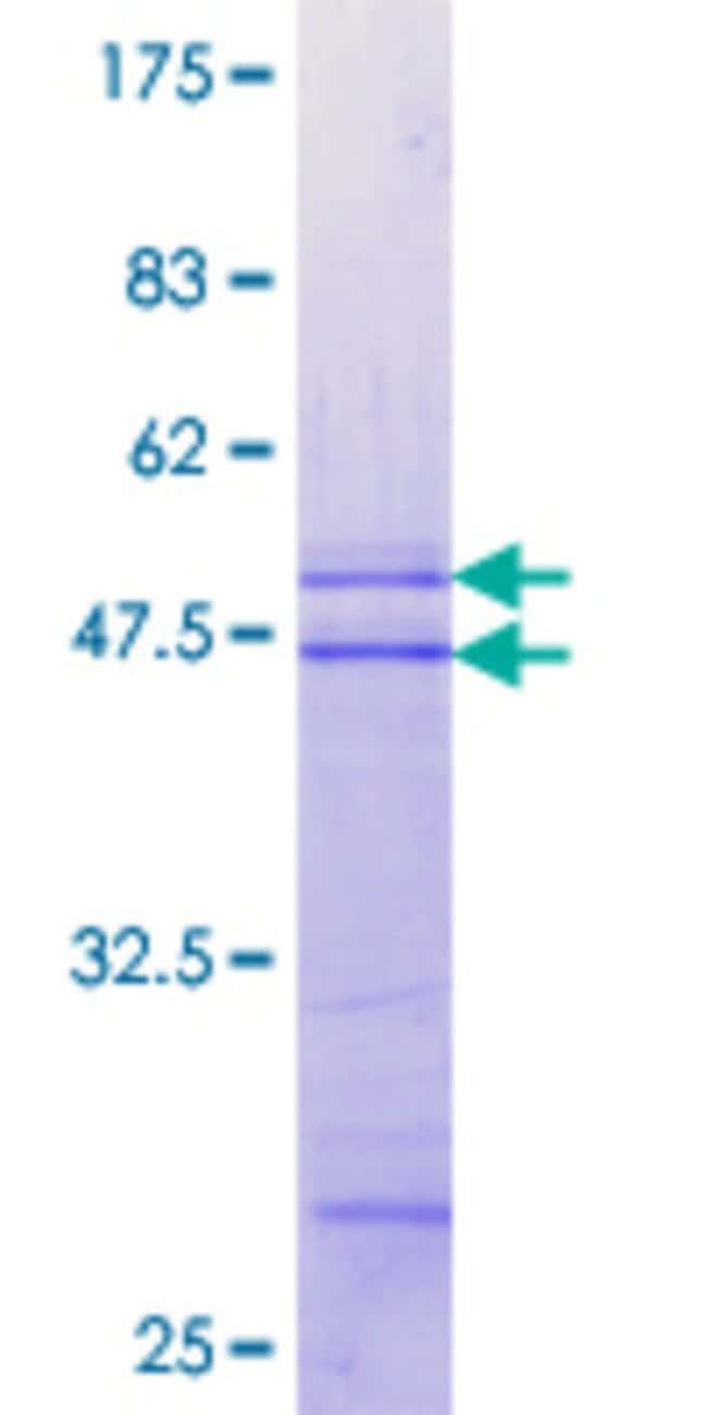 Abnova™Human MAP3K13 Partial ORF (NP_004712.1, 711 a.a. - 810 a.a.) Recombinant Protein with GST-tag at N-terminal 10μg Abnova™Human MAP3K13 Partial ORF (NP_004712.1, 711 a.a. - 810 a.a.) Recombinant Protein with GST-tag at N-terminal