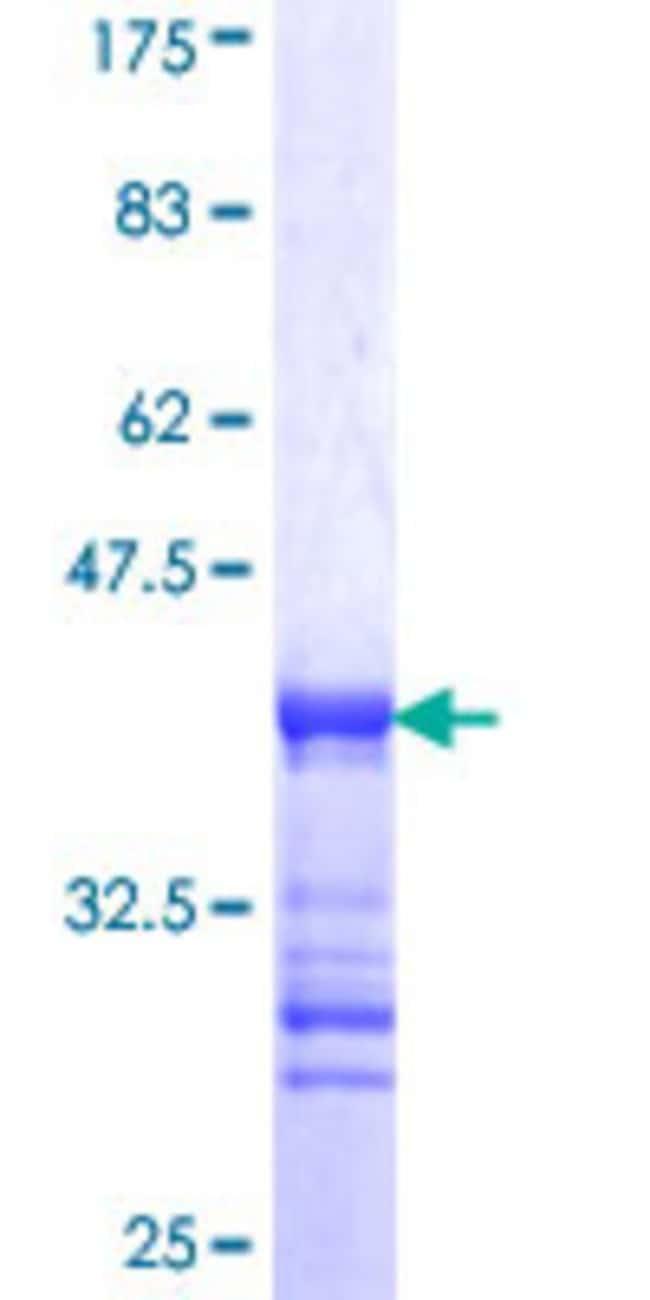 AbnovaHuman REPS2 Partial ORF (NP_004717, 66 a.a. - 165 a.a.) Recombinant