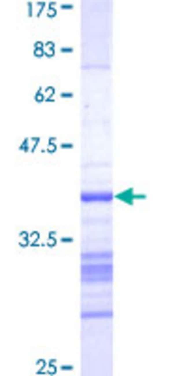 AbnovaHuman AURKB Partial ORF (AAH09751, 1 a.a. - 90 a.a.) Recombinant