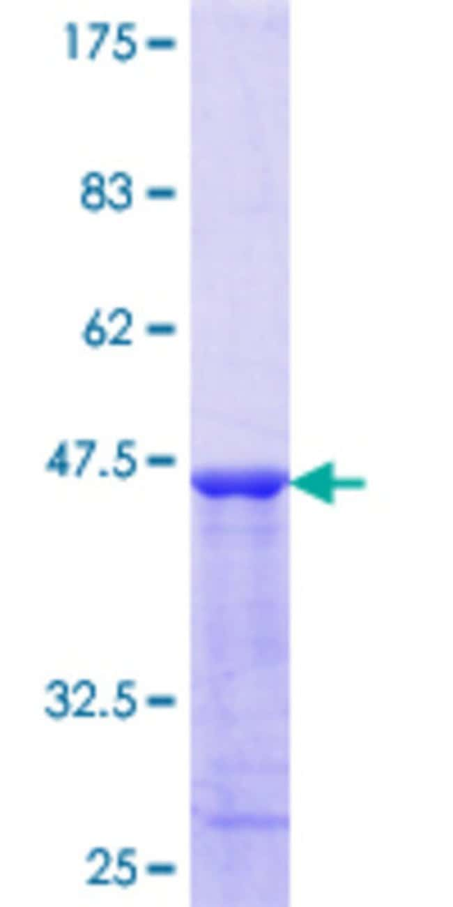 Abnova™ Human VAPB Partial ORF (NP_004729.1, 124 a.a. - 223 a.a.) Recombinant Protein with GST-tag at N-terminal 25μg Abnova™ Human VAPB Partial ORF (NP_004729.1, 124 a.a. - 223 a.a.) Recombinant Protein with GST-tag at N-terminal