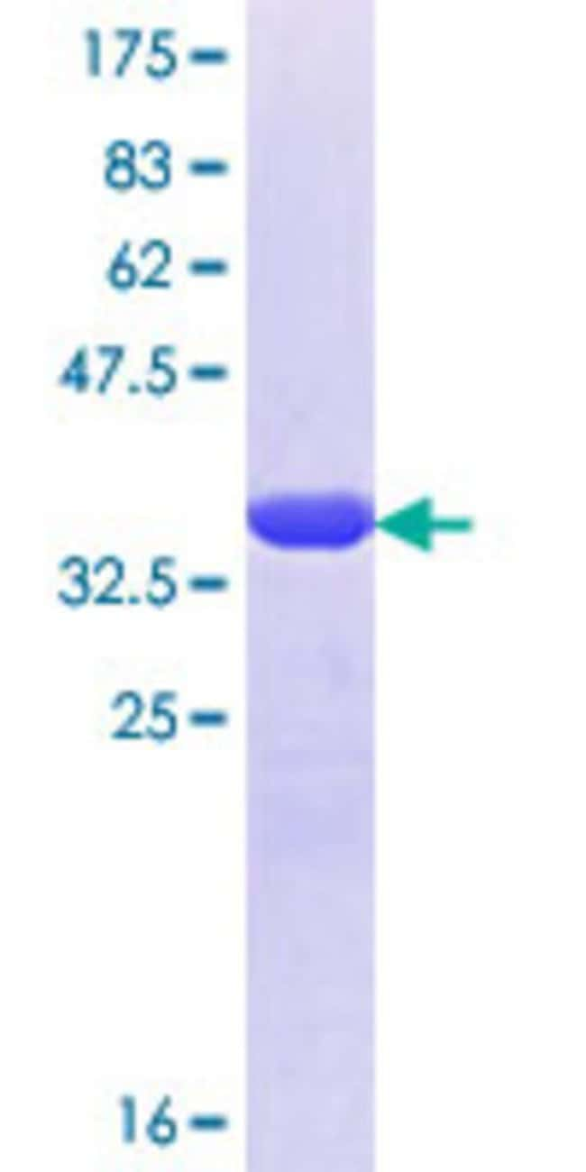 Abnova™ Human VAPB Partial ORF (NP_004729.1, 121 a.a. - 204 a.a.) Recombinant Protein with GST-tag at N-terminal 25μg Abnova™ Human VAPB Partial ORF (NP_004729.1, 121 a.a. - 204 a.a.) Recombinant Protein with GST-tag at N-terminal