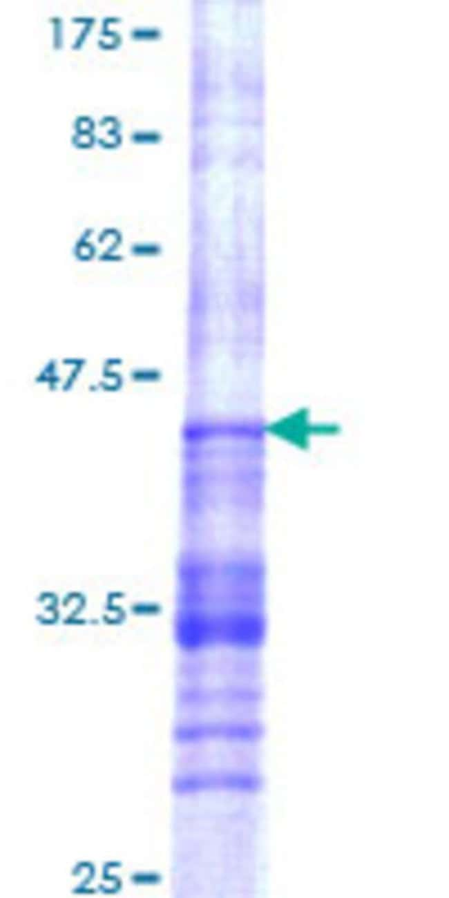 Abnova™ Human TIAF1 Partial ORF (NP_004731, 1 a.a. - 115 a.a.) Recombinant Protein with GST-tag at N-terminal 25μg Abnova™ Human TIAF1 Partial ORF (NP_004731, 1 a.a. - 115 a.a.) Recombinant Protein with GST-tag at N-terminal