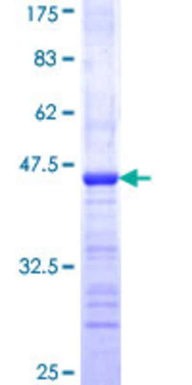 Abnova™Human MAGI1 Partial ORF (NP_004733, 761 a.a. - 859 a.a.) Recombinant Protein with GST-tag at N-terminal 25μg Abnova™Human MAGI1 Partial ORF (NP_004733, 761 a.a. - 859 a.a.) Recombinant Protein with GST-tag at N-terminal