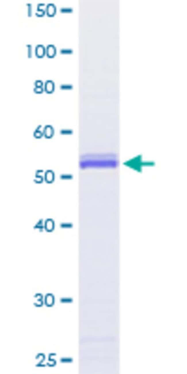 Abnova Human PTTG1 Full-length ORF (NP_004210.1, 1 a.a. - 202 a.a.) Recombinant