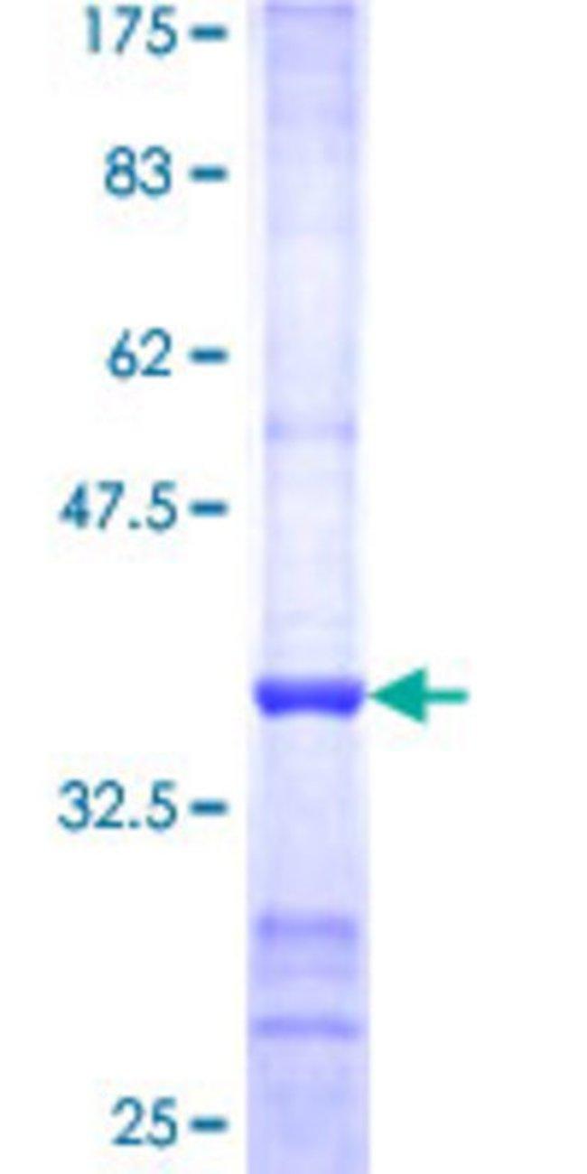 Abnova Human PNMA1 Partial ORF (NP_006020, 62 a.a. - 160 a.a.) Recombinant